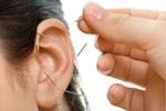 Heilpraktikerin therapiert mit einer Ohrakupunktur